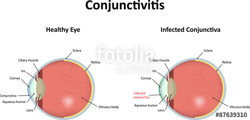 Conjunctivitis: Inflammation Of The Conjunctiva