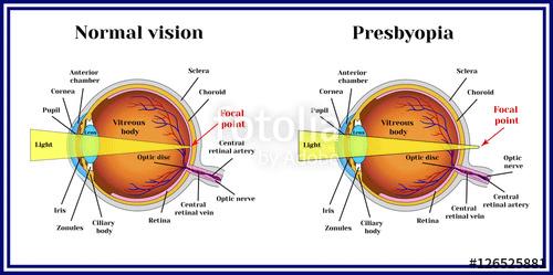 Refractive errors eyeball. Presbyopia
