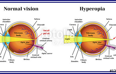 Hyperopia – Long sightedness