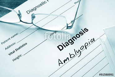 Amblyopia (Lazy Eye)